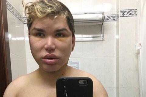 Rodrigo Alves : La santé du Ken humain est en danger après sa 50e opération