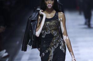 Winnie Harlow : En lingerie, le top model atteint de vitiligo se dévoile
