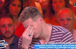 Matthieu Delormeau en larmes : Victime d'attaques homophobes, il raconte