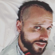 """Cyril de """"Koh-Lanta 2019"""" dévoile des photos choc' de son agression à New-York survenue en 2016 - Instagram, 20 août 2019"""