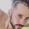 """Cyril de """"Koh-Lanta"""" dévoile des photos après son agression, le 20 août 2019, sur Instagram"""