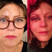 Susan Sarandon : Très amochée, le nez cassé, elle lance un appel d'urgence