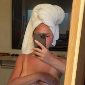 Chrissy Teigen : Topless pour exhiber son méga coup de soleil