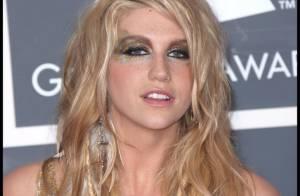 Kesha : Après avoir durement taclé Britney Spears et Justin Bieber... elle présente ses excuses ! Sincères ou pas ?