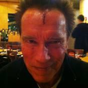 Arnold Schwarzenegger se blesse sérieusement