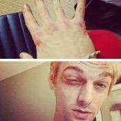 Aaron Carter : Le jeune chanteur tabassé par des fans des New Kids on The Block