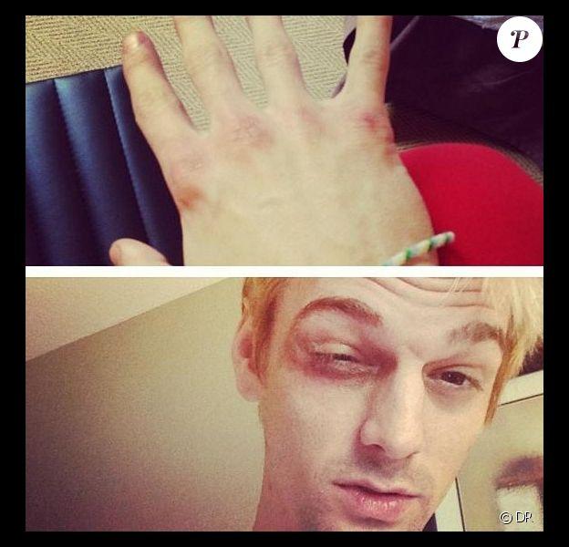 Aaron Carter a posté sur son Instagram des photos de son visage tuméfié après une bagarre à Boston, le 23 juin 2013.