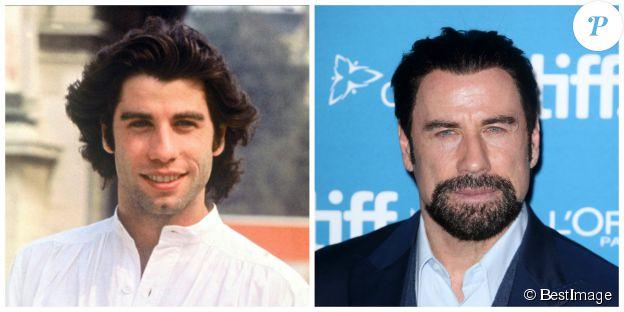 John Travolta en 1978 et en 2014. ©BESTIMAGE
