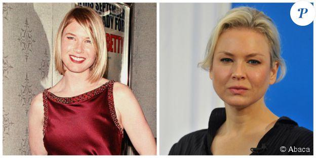 Renée Zellweger en septembre 2000 et en octobre 2014. ©Abaca Press