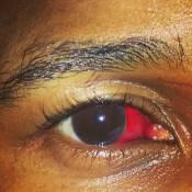 Usher : L'oeil salement amoché après une bagarre, le chanteur s'est fiancé !