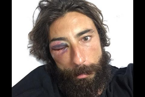 Vittorio Brumotti agressé : Le cycliste de l'extrême pourrait perdre un oeil...