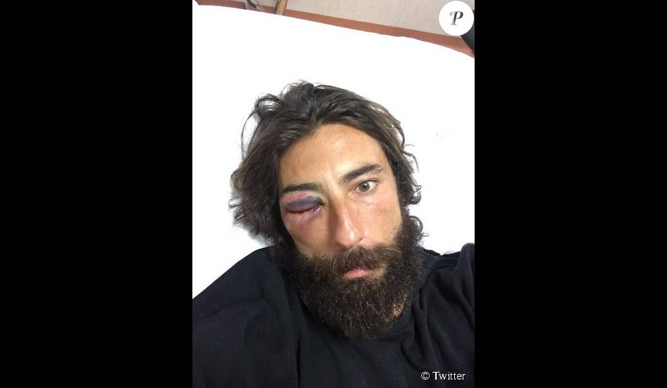 Vittorio Brumotti blessé à l'oeil après une bagarre - août 2015