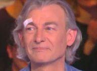 TPMP - Gilles Verdez : Maux de tête et insomnies après la gifle de JoeyStarr
