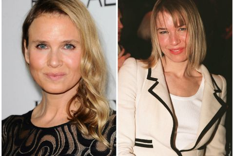 Renée Zellweger, les lèvres gonflées : L'actrice a-t-elle abusé des injections ?