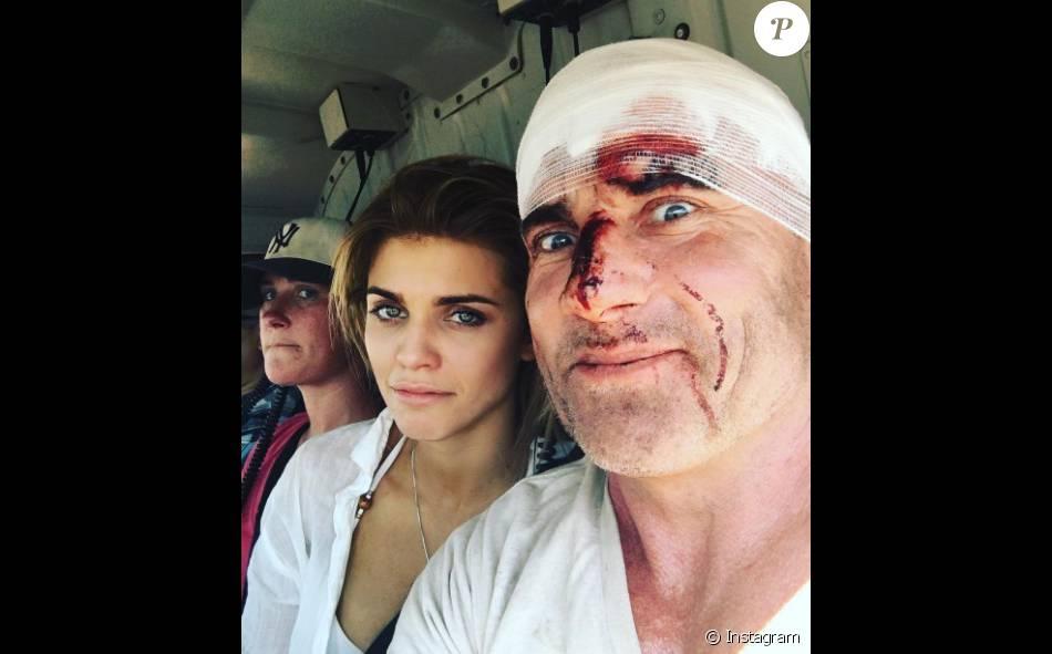 """Dominic Purcell et AnnaLynne McCord après l'accident survenu sur le tournage de la cinquième saison de """"Prison Break"""", au Maroc."""