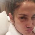 Jennifer Lopez s'est blessée au visage sur le tournage de sa série Shades of Blue. Photo publiée sur Instagram le 1er décembre 2016