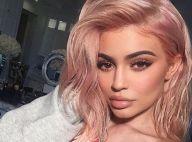 Kylie Jenner et ses lèvres gonflées : Les raisons de son recours à la chirurgie