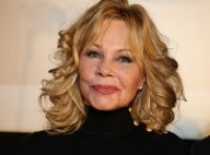 Melanie Griffith face au cancer : Son visage marqué, elle assume en public !