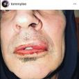 """Dans une publication postée sur Instagram le 6 mars 2018, l'ex-époux de Pamela Anderson, Tommy Lee, affirme avoir été frappé au visage par leur fils aîné Brandon Thomas (21 ans). Le musicien a par la suite supprimé son message. De son côté, le mannequin assure avoir agi en """"légitime défense"""" face à son père ivre."""