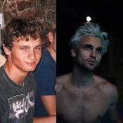 Bastien (Secret Story 10) ravagé par l'acné : Son #10yearschallenge épate