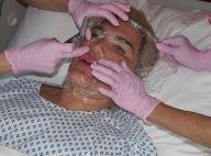 Rodrigo Alves : Nouvelle opération de chirurgie, il dévoile le résultat