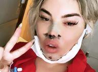 Jessica Alves : Nouvelle opération au visage après une grave infection