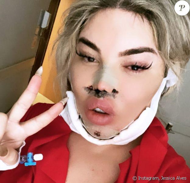 Jessica Alves informe ses followers Instagram sur ses dernières opérations de chirurgie esthétique.