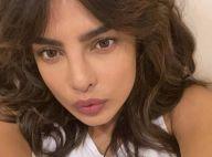 """Priyanka Chopra et son opération ratée : """"Mon visage était complètement différent"""""""