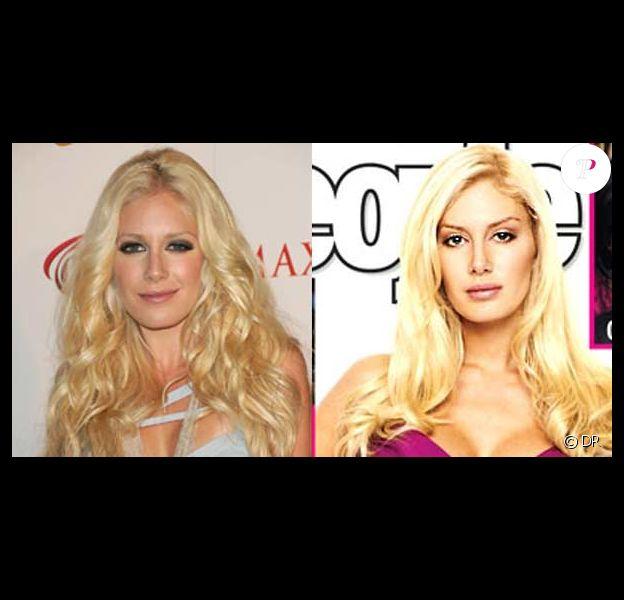 Heidi Montag avant et après
