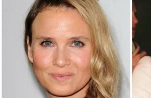Chirurgie esthétique : Hollywood ou New York, les stars choisissent leur camp