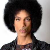 Prince : Victime d'une overdose et admis d'urgence à l'hôpital avant sa mort