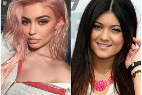 """Kylie Jenner et la chirurgie : """"Je n'ai pas refait mes joues et ma mâchoire"""""""
