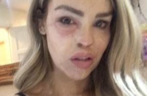 Katie Piper : Le mannequin défiguré à l'acide hospitalisé en urgence !
