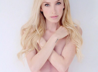 "Taylor Muhl : Le mannequin a ""absorbé"" sa jumelle, une maladie rare"