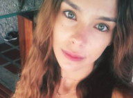 Marine Lorphelin sans maquillage : L'ex-Miss France assume ses imperfections