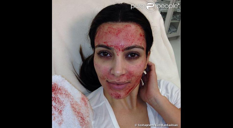 Kim Kardashian a posté une photo d'elle, le visage en sang, sur Instagram, le 11 mars 2013. Une énième victime de Twilight ?