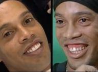 Ronaldinho opéré des dents : La star du foot montre son nouveau sourire