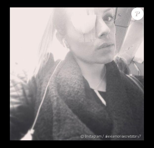 """Alexia de """"Secret Story 7"""" a dévoilé un gros bandage au niveau de son oeil. La candidate de télé-réalité s'est fait mordre par un chien. Février 2014."""