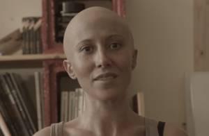 Fabienne Carat (Plus belle la vie): Chauve, battante, poignante contre le cancer