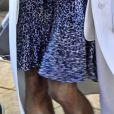 Pamela Anderson à Stockholm, le 24 octobre 2014 : des jambes très amaigries