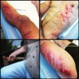 Simon Fourcade, blessé par un chauffard, raconte sa colère sur Facebook le 5 juin 2015.