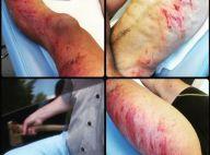 Simon Fourcade blessé : Le biathlète renversé et menacé à la hache