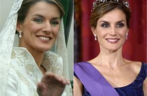 Letizia d'Espagne, la chirurgie esthétique et le Botox : Sa soeur s'exprime...