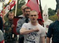 Daniel Radcliffe métamorphosé : Crâne rasé, il se mue en néo-nazi