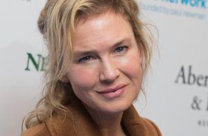 Renée Zellweger et la chirurgie esthétique : Face à la