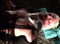 """Richard Branson, victime d'un grave accident : """"J'ai cru que j'allais mourir..."""""""