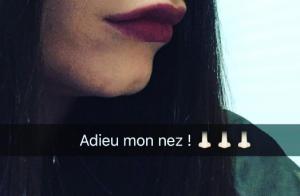 Nadège Lacroix (Les Anges 8) : À l'hôpital pour se faire refaire le nez !