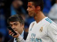 Cristiano Ronaldo : Frappé au visage et en sang sur le terrain...