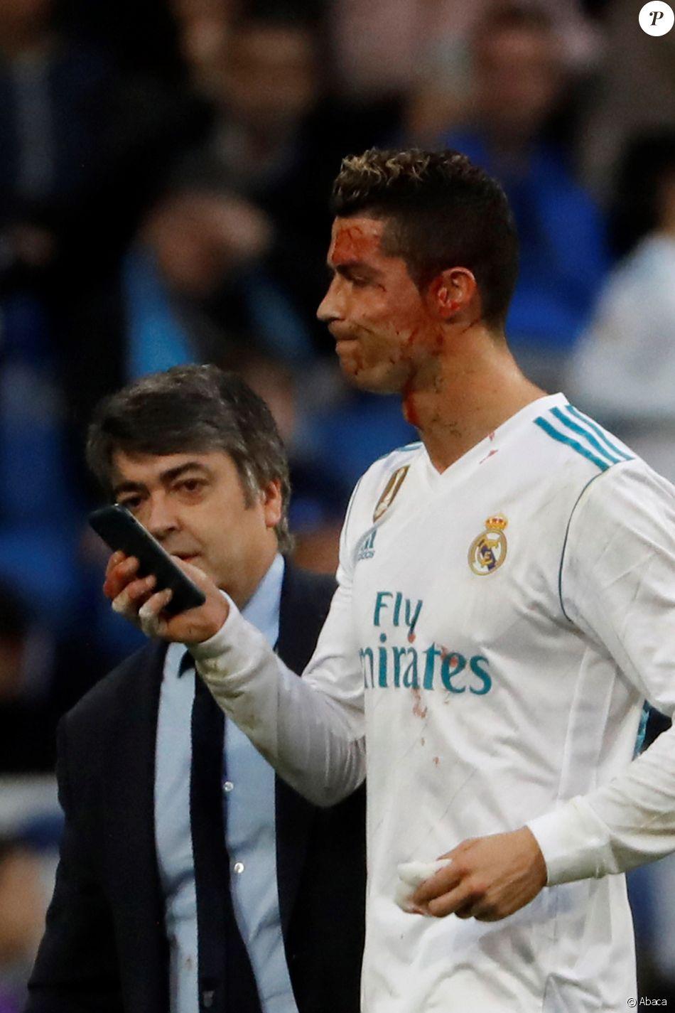 Cristiano Ronaldo a reçu un coup de pied au visage lors du match opposant le Real Madrid au Deportivo, au stade Santiago Bernabeu à Madrid, le 21 janvier 2018