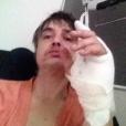 Pete Doherty annonce, ce 30 avril 2019, avoir été hospitalisé en raison d'une blessure qui s'est infectée à la main. Le rockeur s'est piqué sur un hérisson.